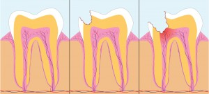 Three phase of caries, vector illustration